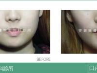 改良式分層口內取脂案例-04